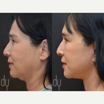 Facelift and Upper Blepharoplasty before 3100719