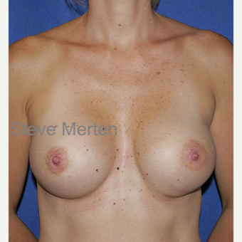 25-34 year old woman treated with Breast Augmentation after 3472572