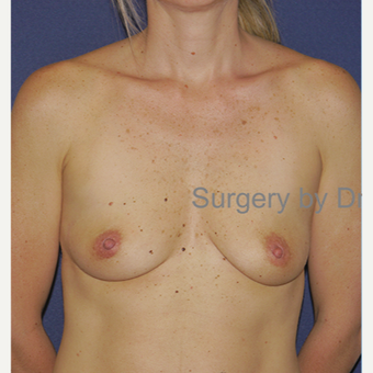 25-34 year old woman treated with Breast Augmentation before 3472572