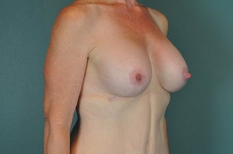 Breast Implants after 1134138
