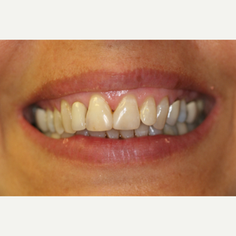 35-44 year old woman treated with Porcelain Veneers before 3087490