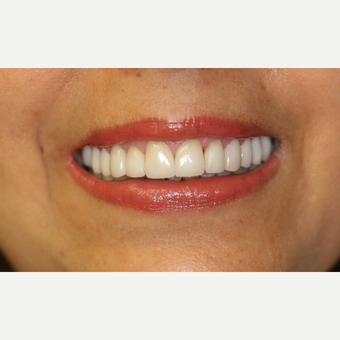 35-44 year old woman treated with Porcelain Veneers after 3087490