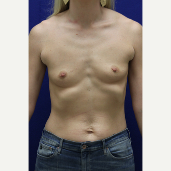 25-34 year old woman treated with Breast Augmentation before 3383372