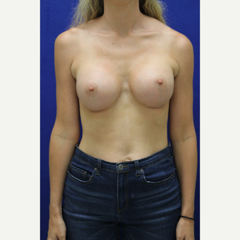 25-34 year old woman treated with Breast Augmentation after 3383372