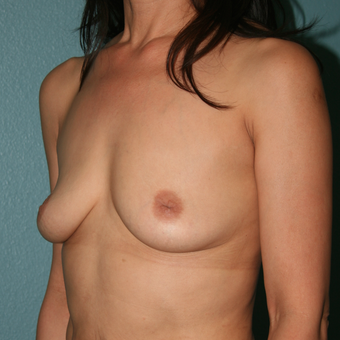 45-54 year old woman treated with Nipple Surgery for Inverted Nipples. Breast Augmentation before 3450278