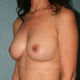 45-54 year old woman treated with Nipple Surgery for Inverted Nipples. Breast Augmentation