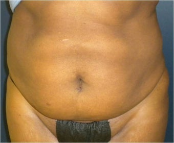 42 year old female with loose abdominal skin, stretch marks, and heaviness along her abdomen and flanks before 1210709