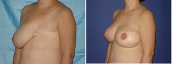 45 year old female treated for mastectomy defect after breast cancer before 1458763