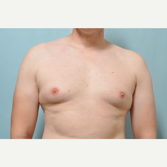 35-44 year old man treated with CoolSculpting before 3226416