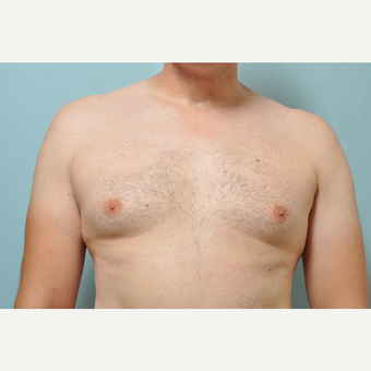 35-44 year old man treated with CoolSculpting after 3226416