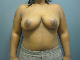 Breast Reduction after 1111453