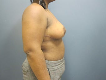 Breast Reduction 1111453