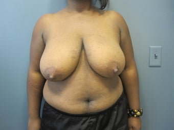 Breast Reduction before 1111453