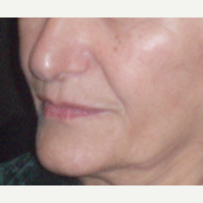 65-74 year old woman treated with Juvederm before 3153681
