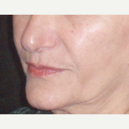 65-74 year old woman treated with Juvederm after 3153681
