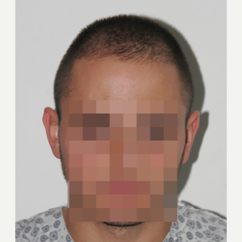 26 years old man treated with FUE Hair Transplant before 3068887