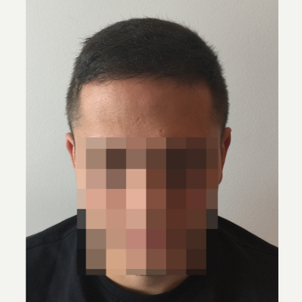 26 years old man treated with FUE Hair Transplant after 3068887