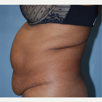 45-54 year old woman treated with Tummy Tuck before 3609780