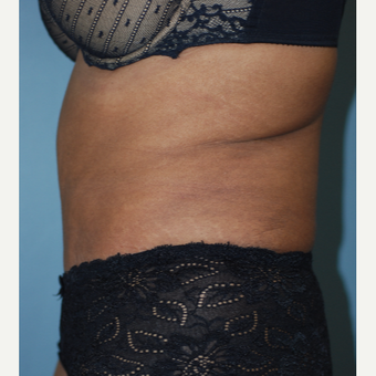 45-54 year old woman treated with Tummy Tuck after 3609780