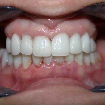18-24 year old woman treated with Teeth Whitening after 2363513