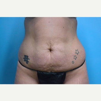 25-34 year old woman treated with Tummy Tuck and liposuction before 2309425