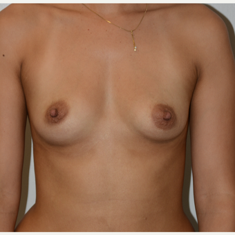 25-34 year old woman treated with Breast Augmentation before 3418506