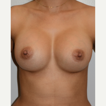 25-34 year old woman treated with Breast Augmentation after 3418506