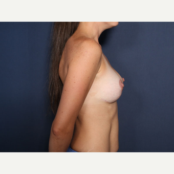 25-34 year old woman treated with Breast Lift (view 2 of 2) after 3288116