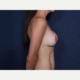 25-34 year old woman treated with Breast Lift (view 2 of 2) before 3288116