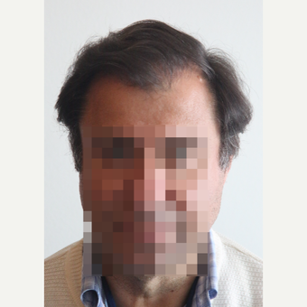 45-54 year old man treated with Hair Transplant after 3069790