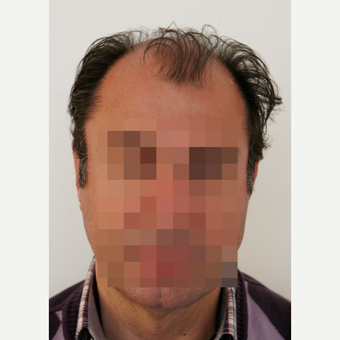 45-54 year old man treated with Hair Transplant before 3069790