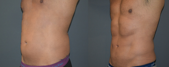 25-34 year old man treated with Vaser Liposuction before 4599330