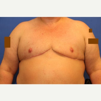 43 year old transgender man treated with FTM Chest Masculinization Surgery after 2109411
