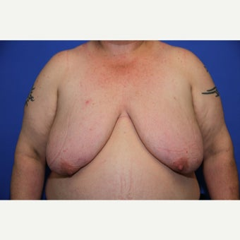 43 year old transgender man treated with FTM Chest Masculinization Surgery before 2109411