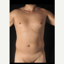 35-44 year old man treated with Vaser Liposuction before 3786741