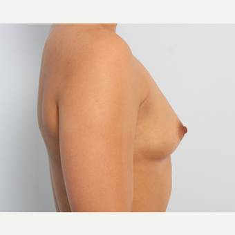 Breast Augmentation before 3340142