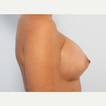 Breast Augmentation after 3340142