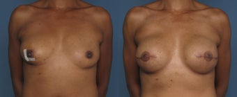 Breast & Nipple Reconstruction before 1041550