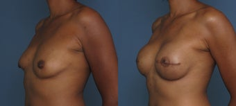 Breast & Nipple Reconstruction 1041550