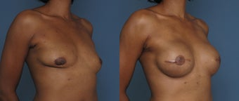 Breast & Nipple Reconstruction after 1041550