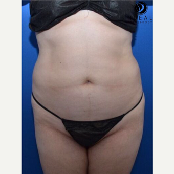 25-34 year old woman treated with Laser Liposuction before 3585879