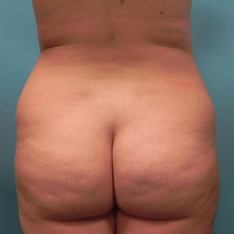 25-34 year old woman treated with Slim Lipo before 1783234