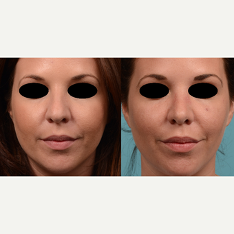 25-34 year old woman treated with Rhinoplasty before 3500682