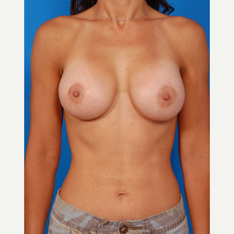 35-44 year old woman treated with Breast Augmentation after 3576827