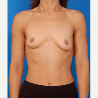 35-44 year old woman treated with Breast Augmentation before 3576827