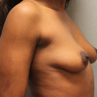 35-44 year old woman treated with Breast Augmentation before 3460355
