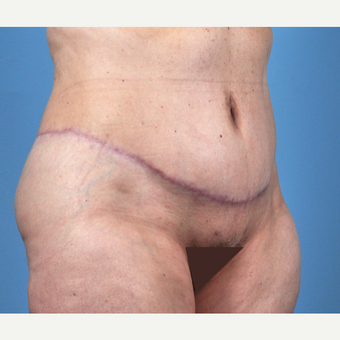 65-74 year old woman treated with Tummy Tuck after 3837521