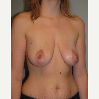 25-34 year old woman treated with Breast Lift with Implants before 3544213