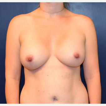 35-44 year old woman treated with Breast Implants after 3384904