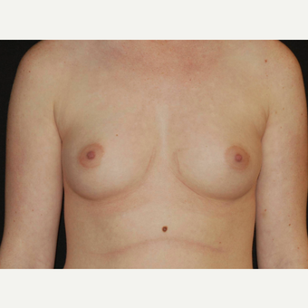 25-34 year old woman treated with Breast Implants before 3650987